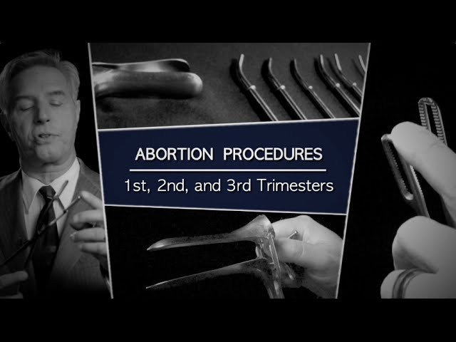 abortus izgleda
